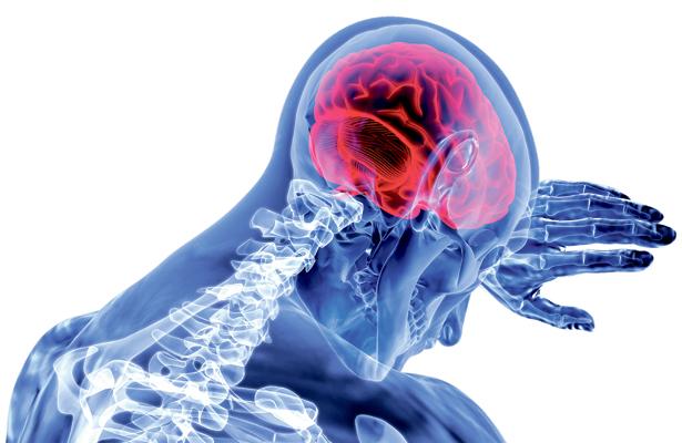 Enfermedad cerebral vascular aparece bruscamente
