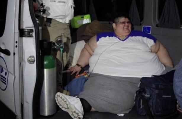 Juan Pedro, el hombre más obeso del mundo, estable tras perder 281 kilos