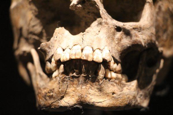 El México antiguo ya contaba con dentistas