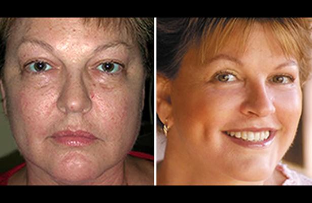 Nuevo enfoque en cirugía facial