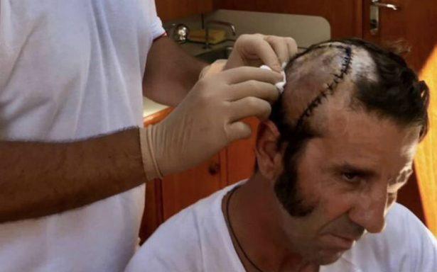 Torero sufre espeluznante cornada en la cabeza