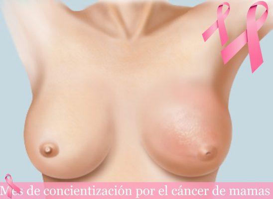 Mueren 17 mujeres al día en México por cáncer de mama