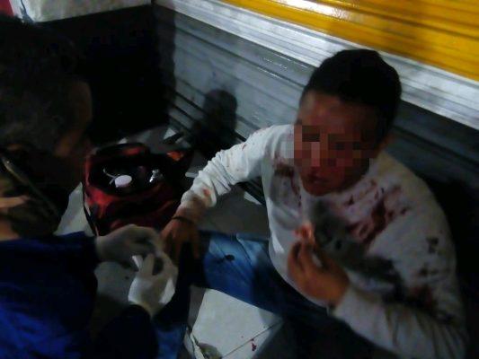 Lesionan a un hombre en una riña