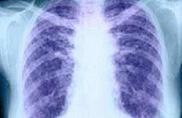 El azar, ¿responsable  de casos de cáncer?