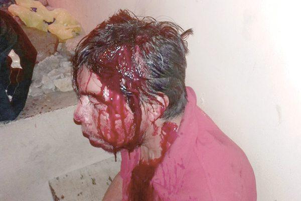 Atienden a hombre severamente golpeado;  no recordoba cómo  se había lesionado