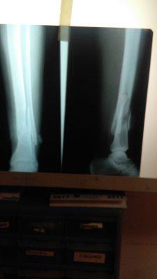 Hombre de El Vergel se lesiona con un disco de soldar mientras trabajaba