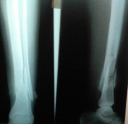 Se quiebra la pierna con un disco de soldar en El Vergel