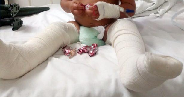 Sale de hospital niño torturado por padrastro en Juárez