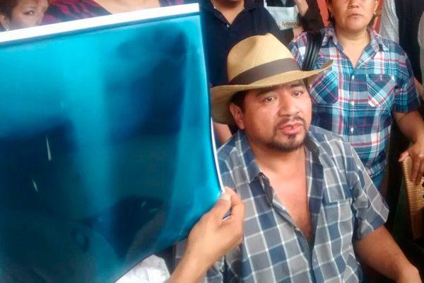 Acusa líder de comerciantes agresión por parte de la policía de San Pedro