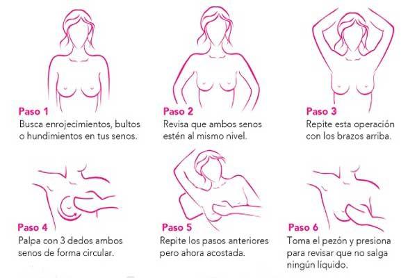 Cada 36 horas muere una mujer en Puebla por cáncer de mama