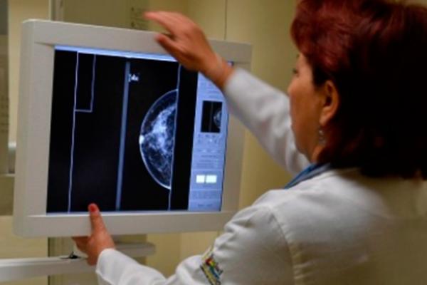 IMSS Puebla aplicará más de 44 mil mastografías en 2017