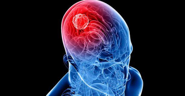 En SLP hay 61 pacientes con tumores en el sistema nervioso