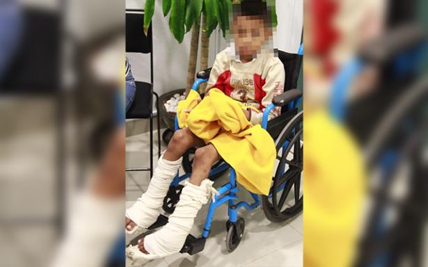IMSS cambió la vida de un niño con pie equinovaro