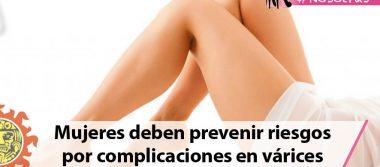 Mujeres deben prevenir riesgos por complicaciones en várices