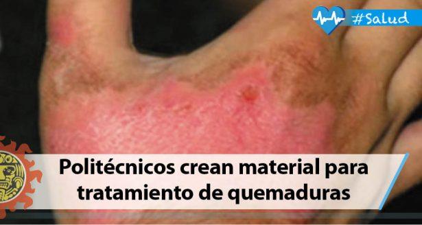 Politécnicos crean material innovador para tratamiento de quemaduras