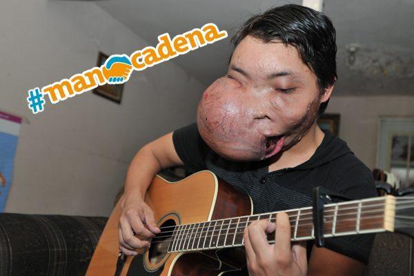 #ManoCadena por Adrián, necesita una operación urgente
