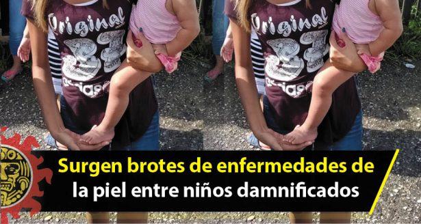 Surgen brotes de enfermedades de la piel entre niños damnificados