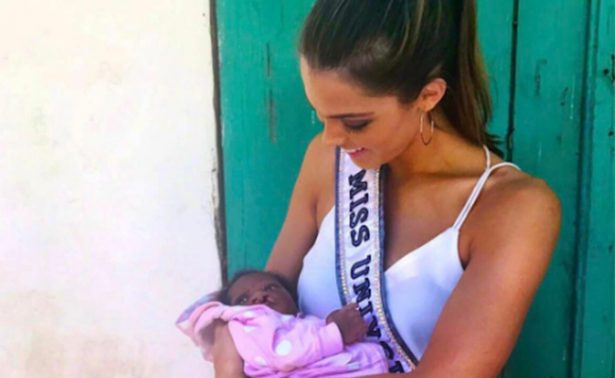 Miss Universo 2016, la nueva embajadora en apoyo a niños con paladar hendido