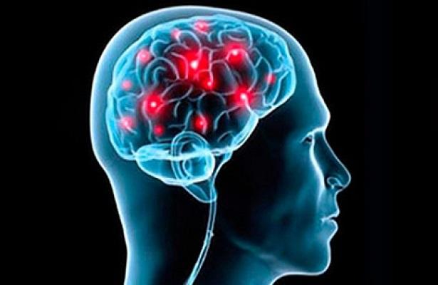 Resultado de imagen para Los golpes en la cabeza provocan pérdida de neuronas