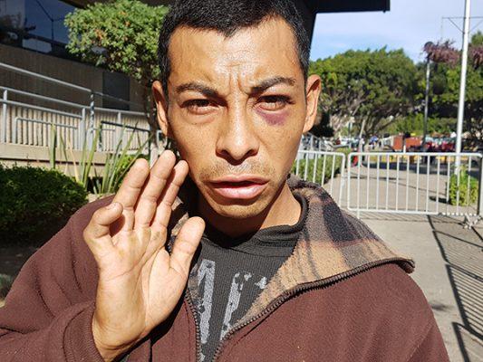 Albañil acusa que lo asaltaron municipales