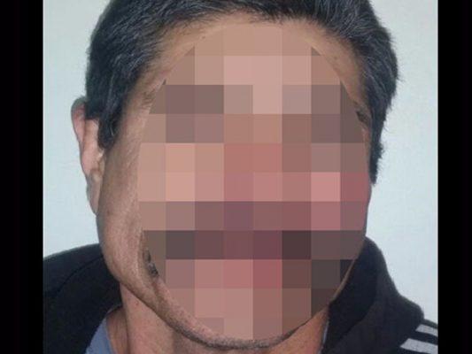 Capturan a hombre que agredió a policía