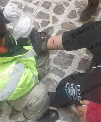 Niño es atacado por perro en Capulhuac