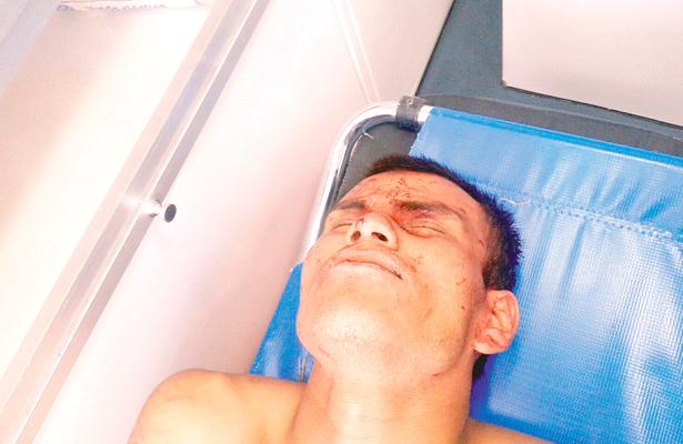Le dieron 5 tiros: vive, hallado en comunidad de Acatlán