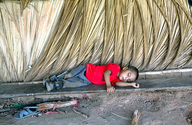 Mueren por desnutrición 180 niños al año