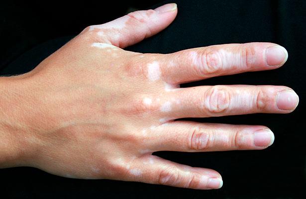 Vitiligo… entre el misticismo y la desinformación
