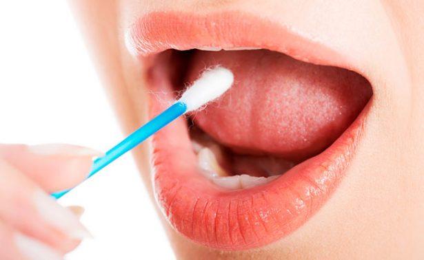 Descubren sustancia en la saliva que ayuda a detectar cáncer oral