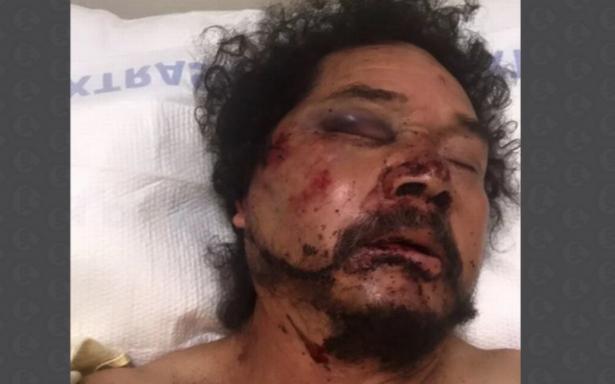 Golpean afroamericanos a un mexicano en Los Ángeles, le tiran tres dientes