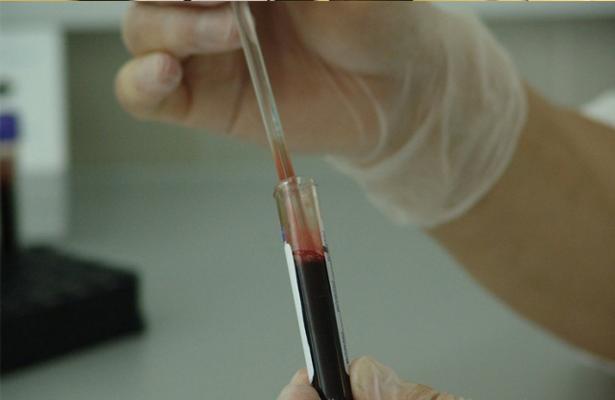 España da a Agencia Antidopaje acceso a sangre