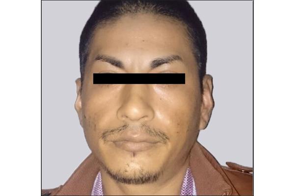 Sujeto presuntamente asesinó a Director de Obras Públicas, de Tejupilco