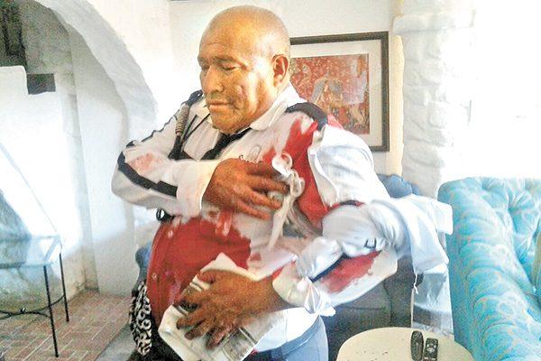 Hieren a vigilante por  frustrar atraco en Coyoacán; detienen a un hombre