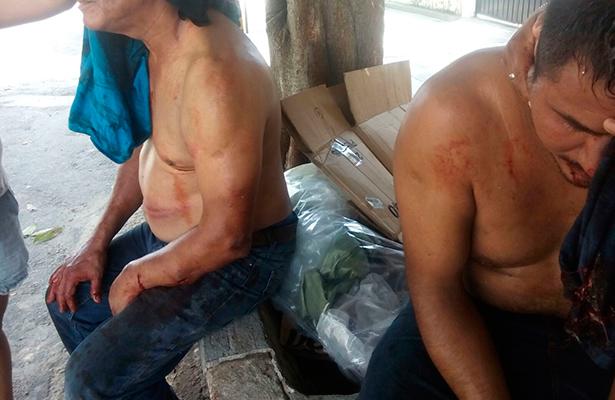 Heridos de gravedad  en enfrentamiento por limpieza de refinería incendiada