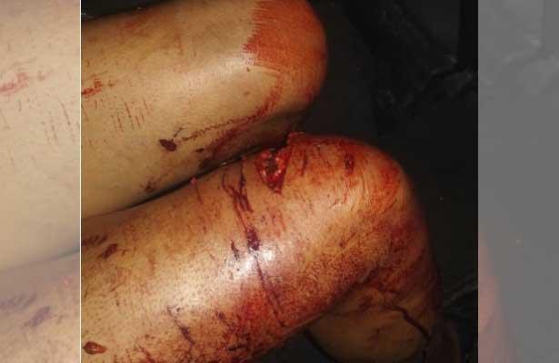 Perros atacan a mordidas a dos adultos y jovencita en Toluca