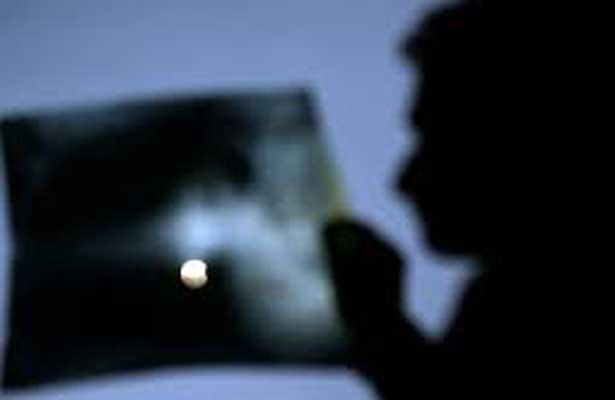 Alertan sobre riesgos de ver Eclipse solar sin protección