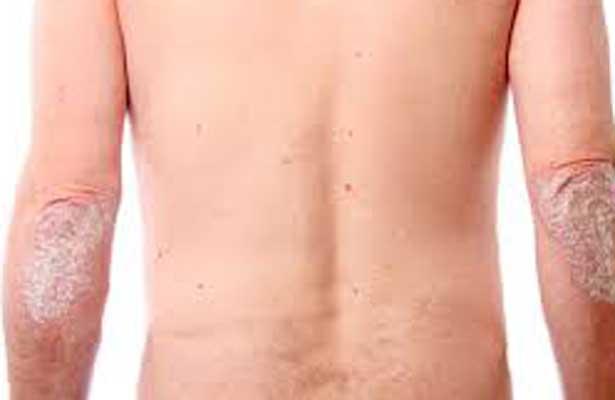 Sobrepeso y obesidad podrían causar psoriasis