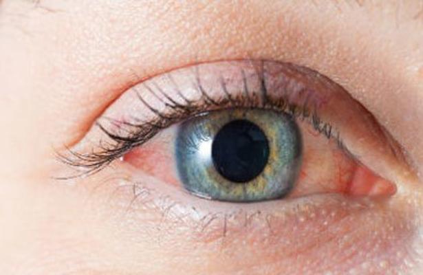 Retinopatía diabética principal causa de ceguera en México: especialista