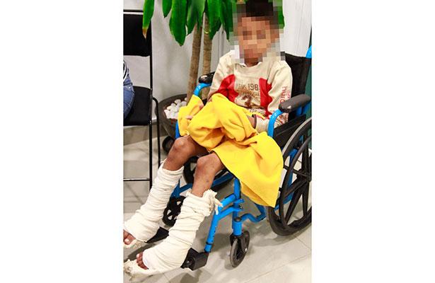 El IMSS cambió la vida de un niño con pie equinovaro