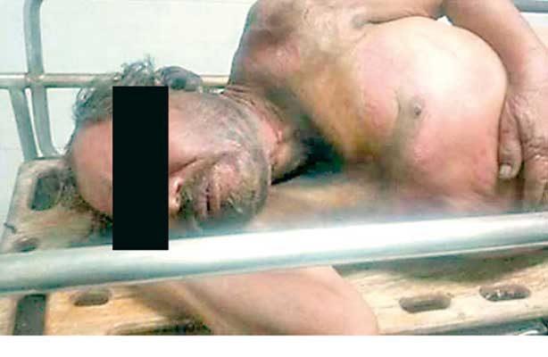 Salvajismo: queman a otro indigente en Xalapa