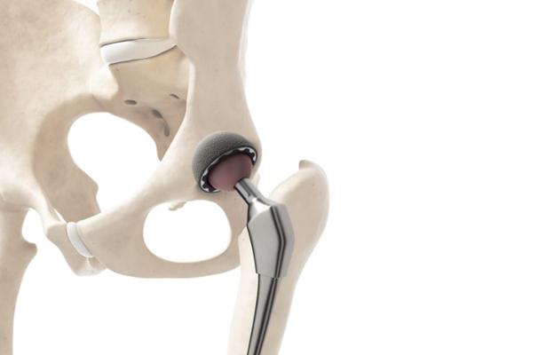 Prótesis de cadera y rodilla mejoran calidad de vida de los pacientes: Especialista