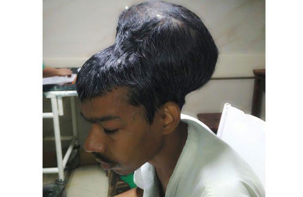 Le extirparon un tumor del tamaño de su cabeza en la India