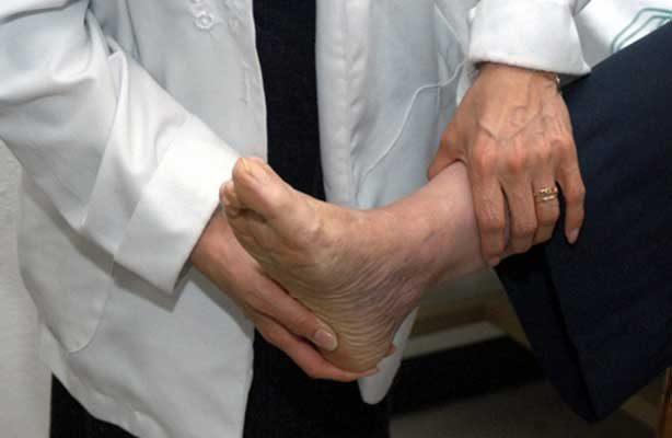 Realiza el Hospital de Traumatología y Ortopedia Lomas Verdes dos mil cirugías de pies al año