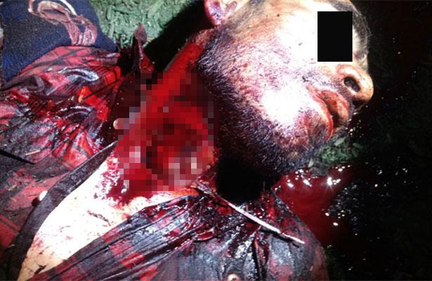 A mordidas un sujeto mató a otro durante una riña