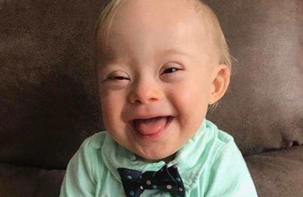 Bebé con Síndrome de Down es la nueva imagen de Gerber