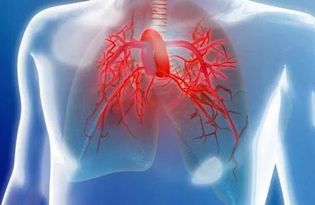 Hipertensión pulmonar enfermedad rara y catastrófica afecta a más de mil 500 mexicanos