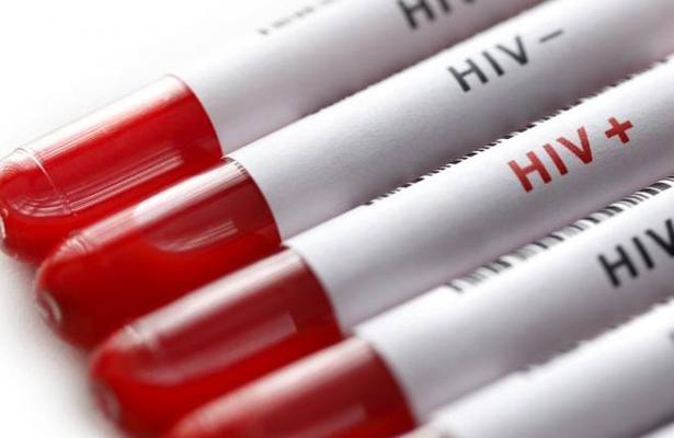 En SLP empresas rechazan a personas con VIH