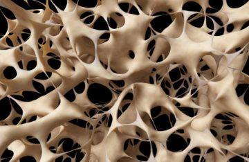Osteoporosis principal causa de fractura: Especialista