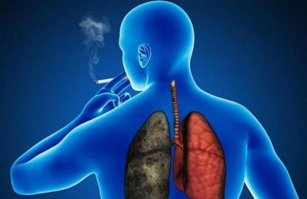 Presentan retos en la atención de cáncer de pulmón en México, especialista